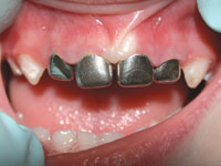stainless steel crowns in pediatric dentistry review